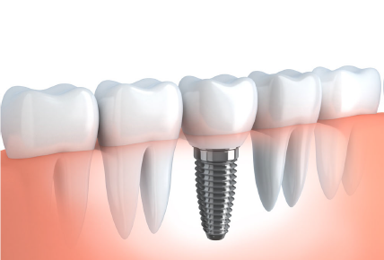 Datant des os et des dents